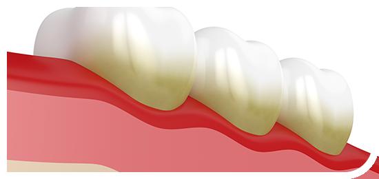 歯周病治療  Gum disease treatment