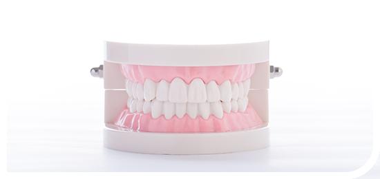 義歯・入れ歯・インプラント Dentures